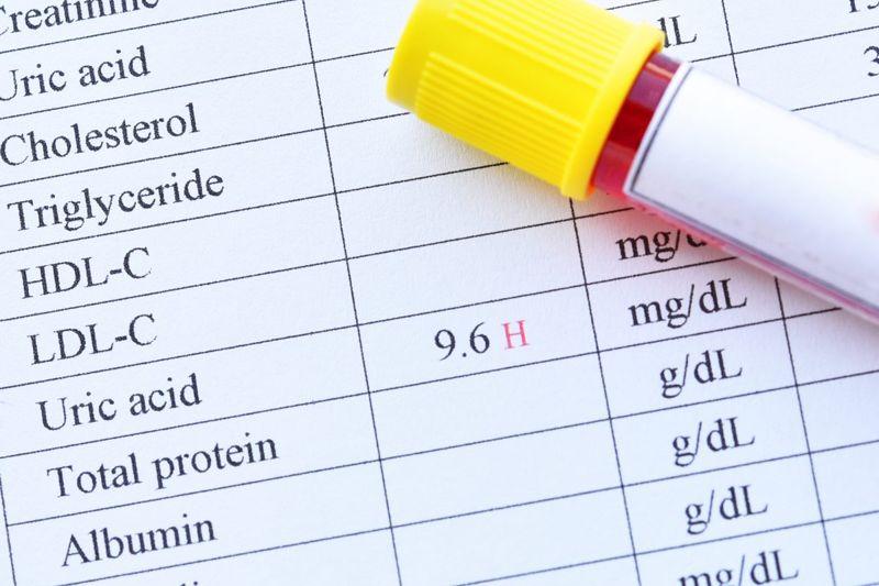 uric acid blood test