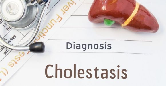 Causes and Treatments for Cholestasis