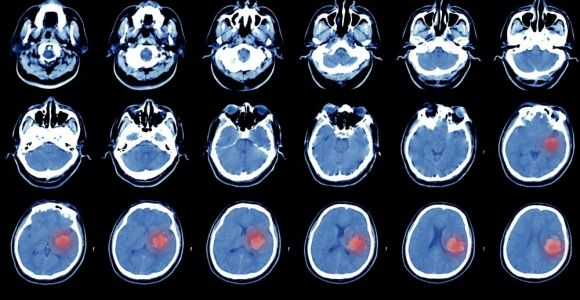 What Is a Hemorrhagic Stroke?