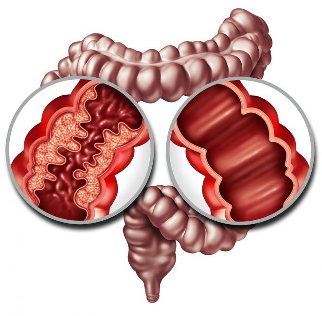 crohns disease ulcerative colitis