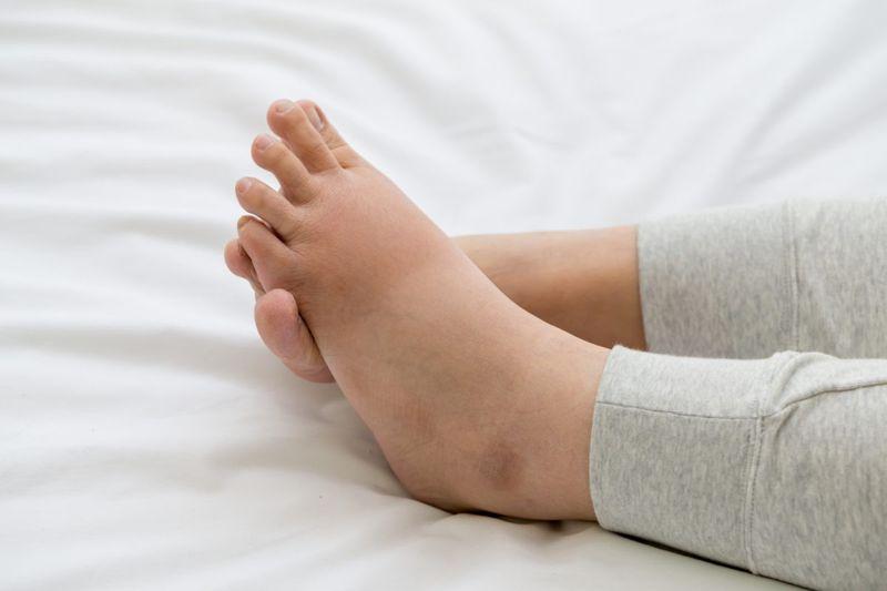 edema swelling feet