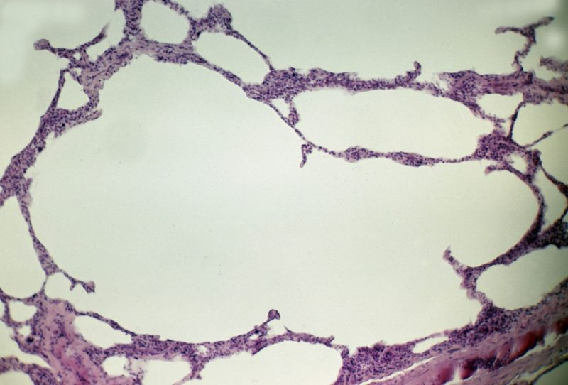 emphysema alveoli bronchioles narrow