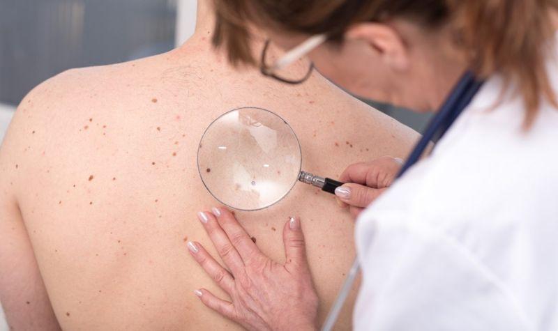 dermatologist back skin examination