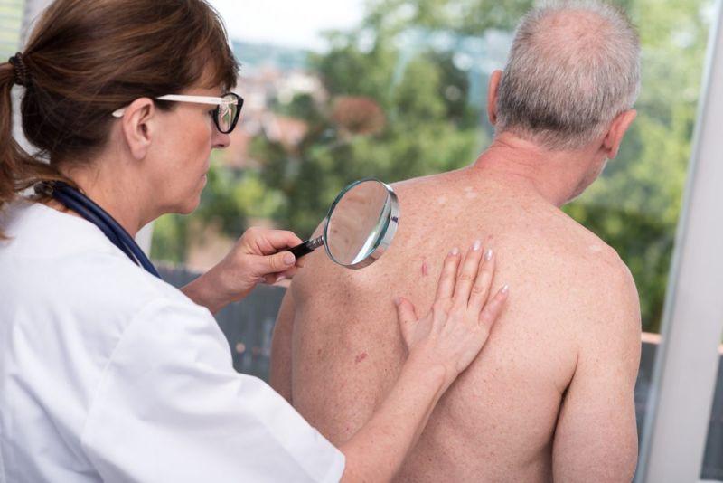 dermatologist exam back senior man