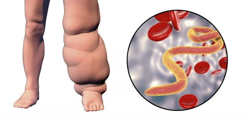 elephantiasis swelling diagram