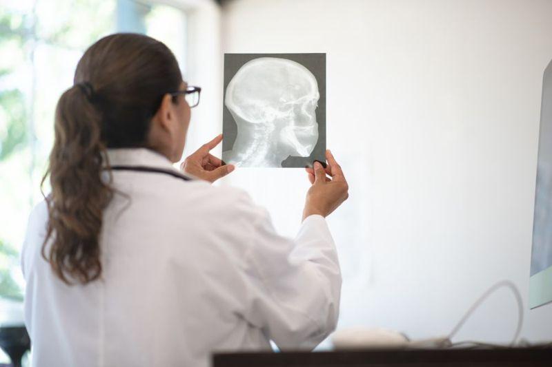 skull fracture intubation contraindication