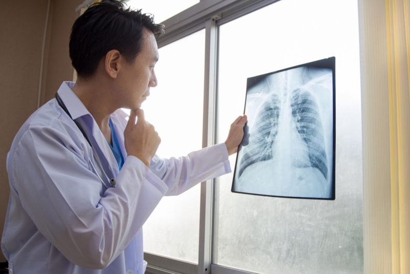 chest x-ray doctor