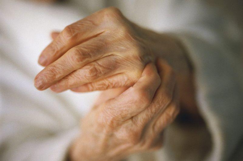 Peripheral Spondyloarthritis hands