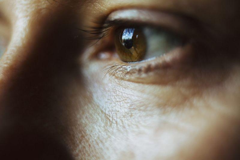 sight optic nerve
