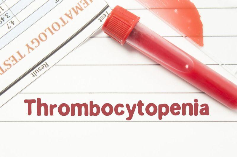 thrombocytopenia purpura allergy