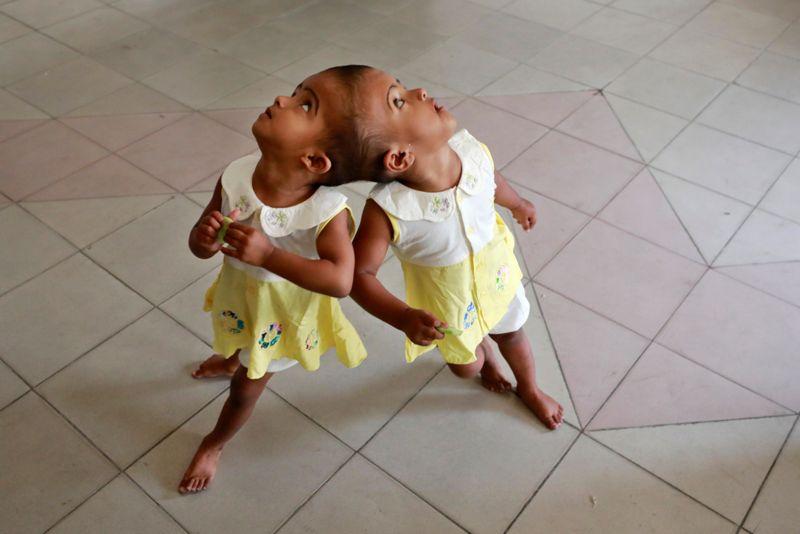 conjoined twins little girls