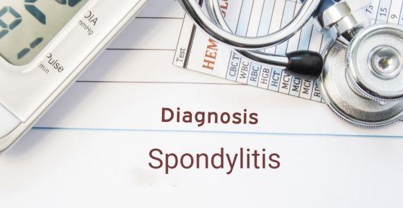 Eight Types of Spondylitis