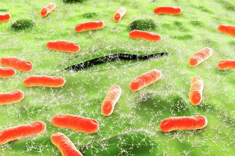 E. coli common UTI cause