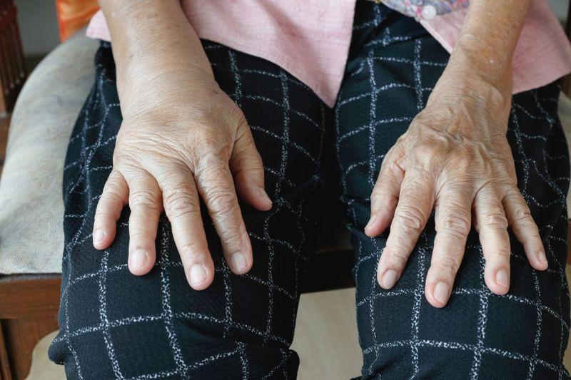 edema hands swelling