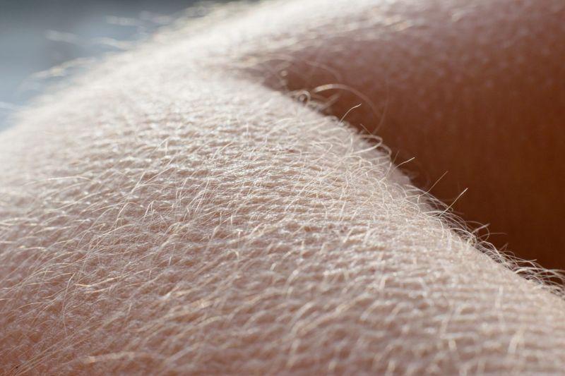 arrector pili muscles contract goosebumps