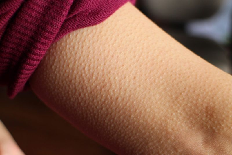 goosebumps arm piloerection