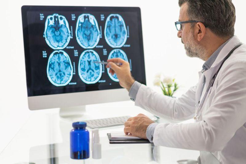 diagnosing amnesia MRI