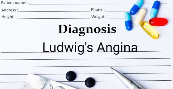 Understanding, Treating, and Preventing Ludwig's Angina