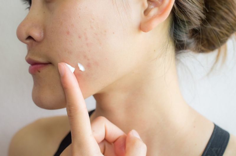 cream gel skin graft