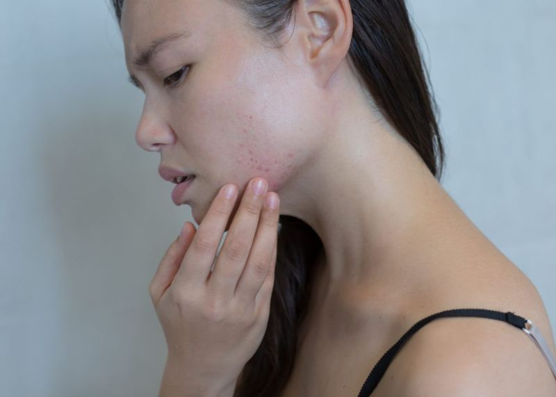 woman with a rash on her face