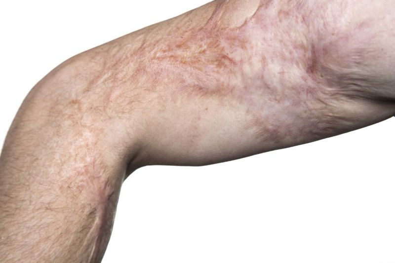 burn scars contracture