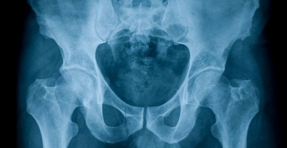 The Anatomy of the Perineum and Related Conditions