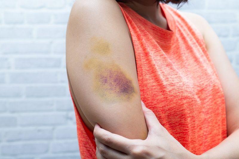 Bruised arm
