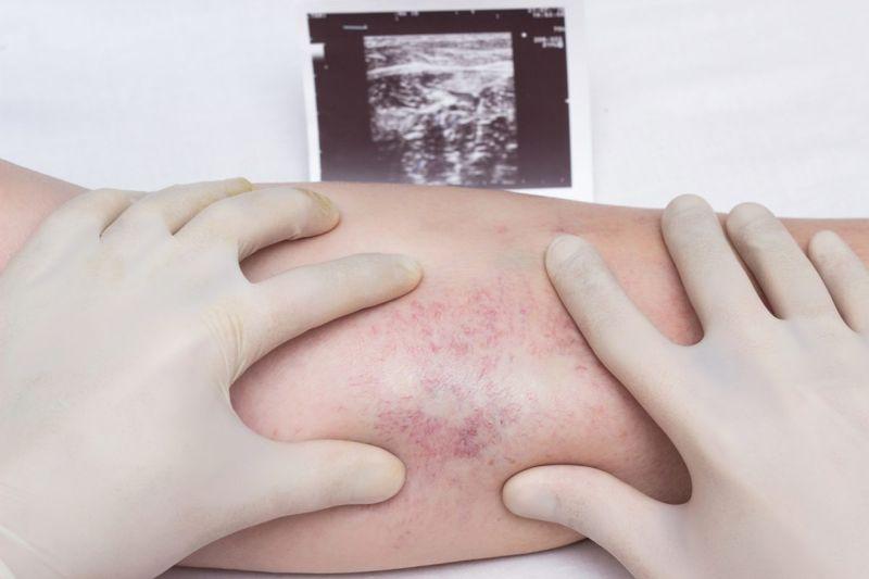doctor examining leg veins