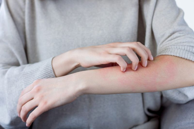 Person scratching arm