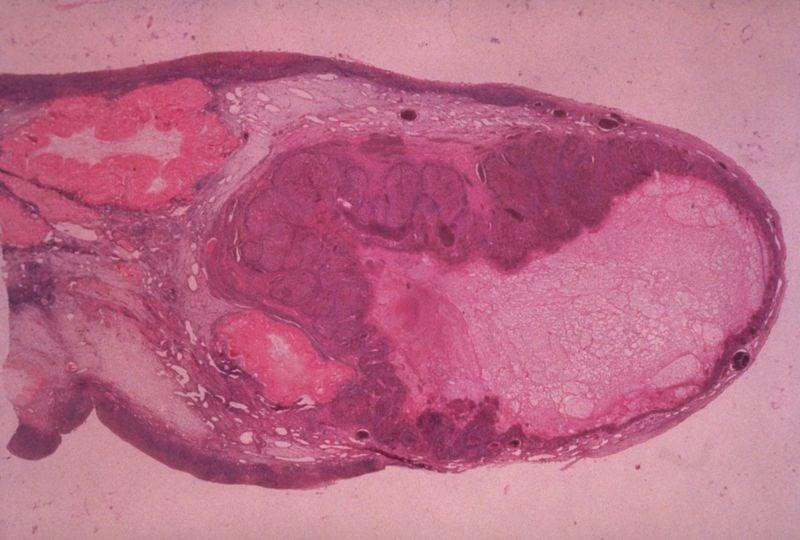 sex hormones progesterone ovulation
