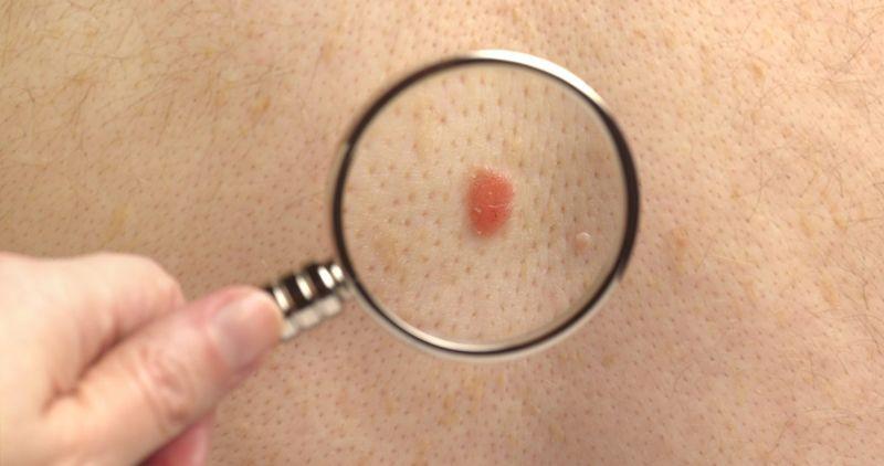 examining a moles