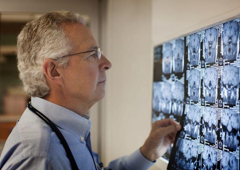 doctor brain imaging