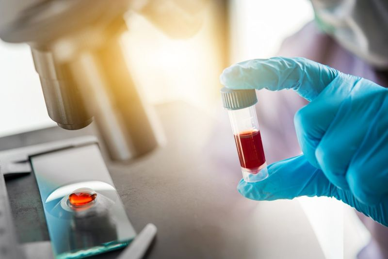 antibody blood fluid researcher