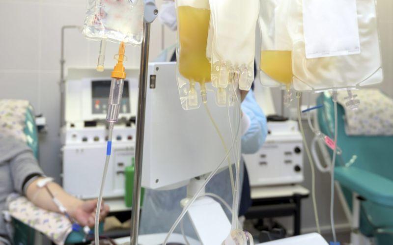 machine blood exchange