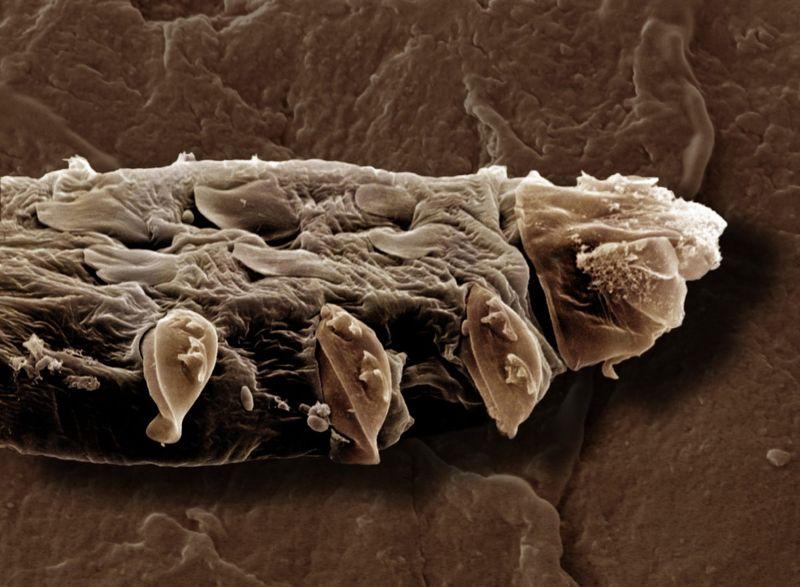 demodex folliculorum mite