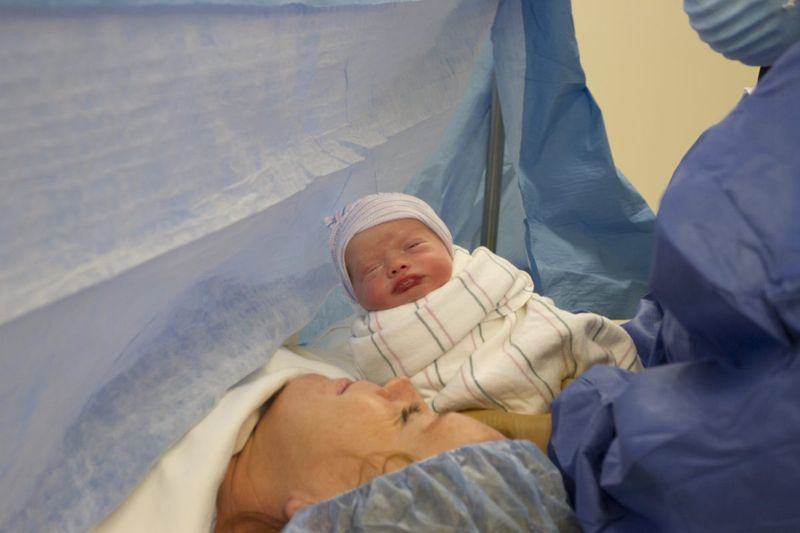 c-section birth lochia