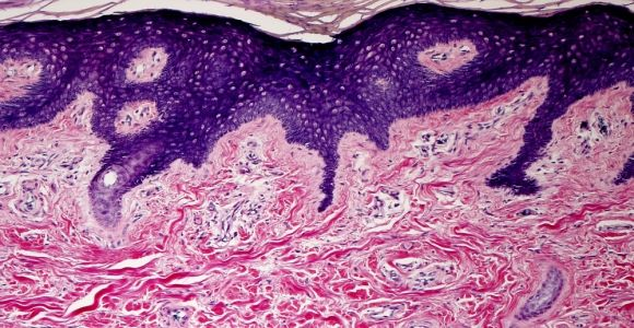 How the Dermis Impacts Overall Health