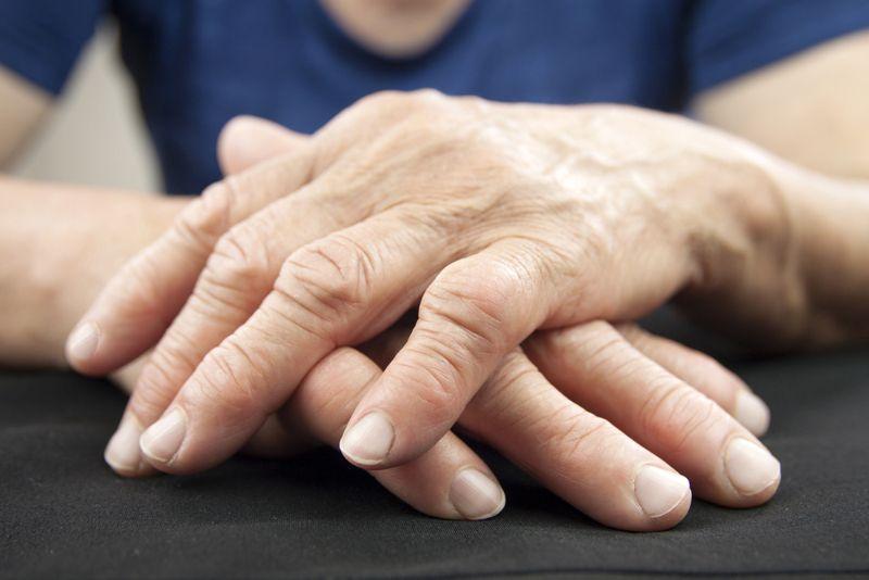 rheumatoid arthritis contracture symptom