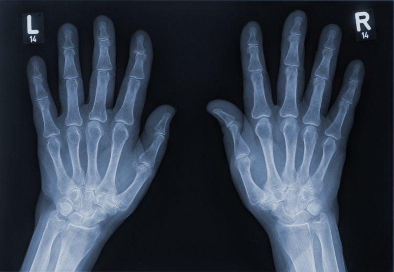 xray osteoarthritis sign heberden nodes