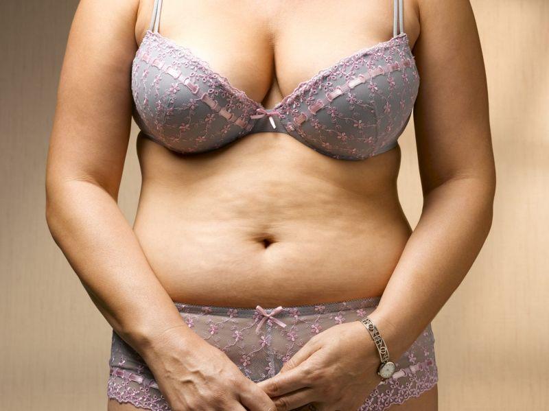 cellulite stomach mild