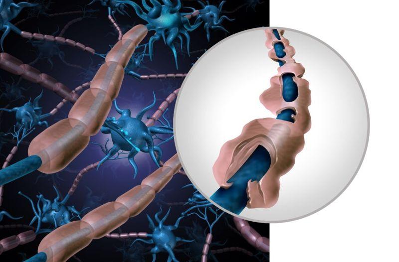 myelin sheath breakdown nerves