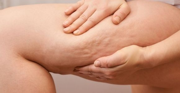 What Is (And What Isn't) Cellulite?