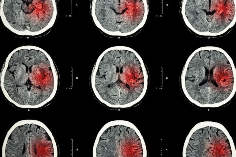 hemorrhagic stroke brain scans
