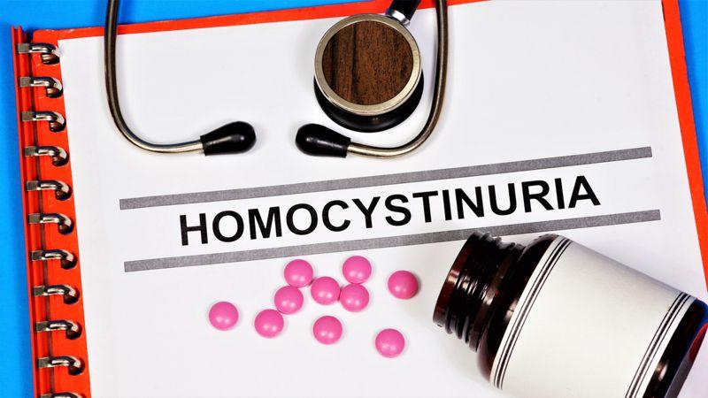 Homocystinuria diagnosis
