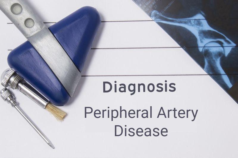 Peripheral Artery Disease on word card