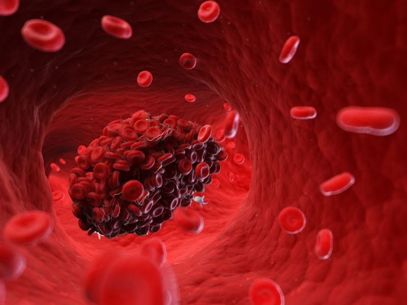 digital rendering of a blood clot in a vein