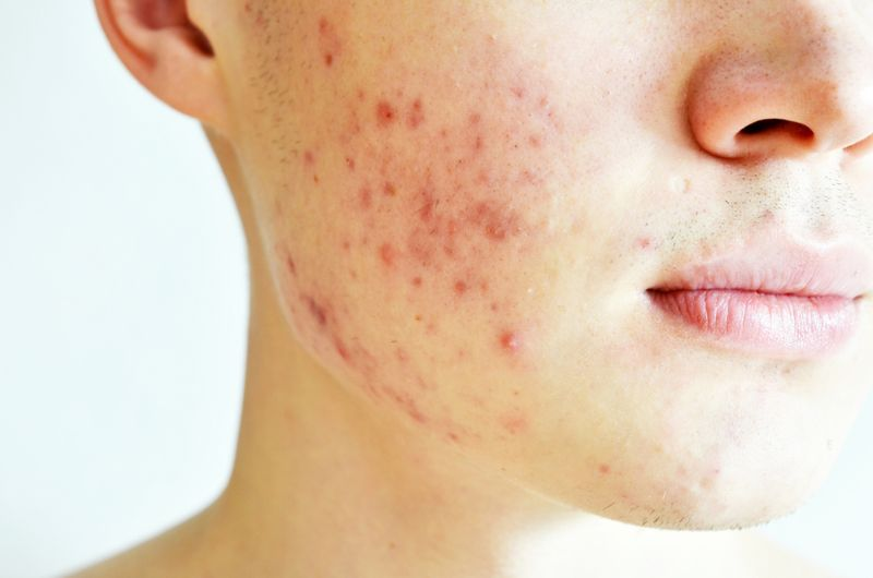 acne on cheek of young man