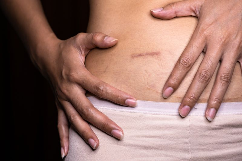 woman's abdomen with scar, closeup