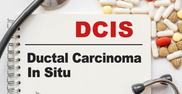 Ductal Carcinoma In Situ: Stage 0 Breast Cancer