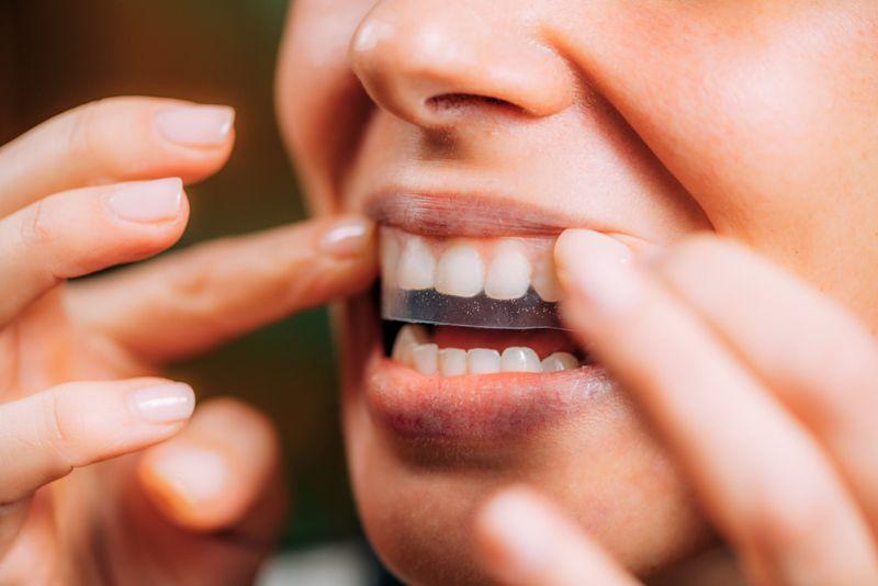 applying teeth whitening strip close up